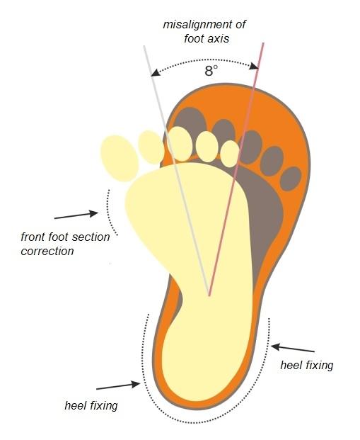Orthopedic sandals 08-801 Anti-varus, size 21-30 Фото 1
